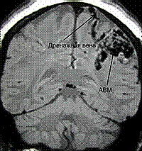 Магнитно-резонансное сканирование - МРТ PDW