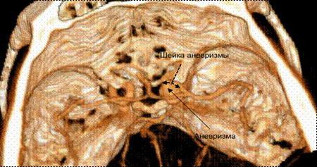 аневризма внутренней сонной артерии на уровне отхождения глазной артерии справа