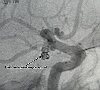 Введение микроспиралей в полость аневризмы