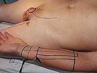 Лучевой лоскут - пластика полового члена